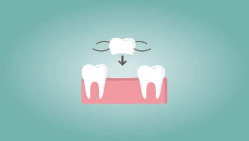 入れ歯(義歯)